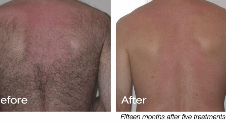 laser Hair Removal Men Back