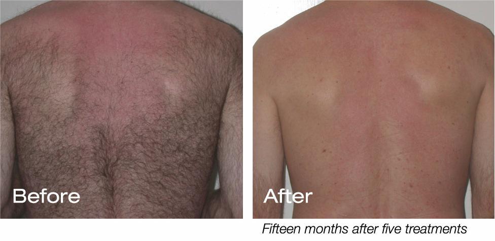 Laser Hair Removal For Men Strayhair