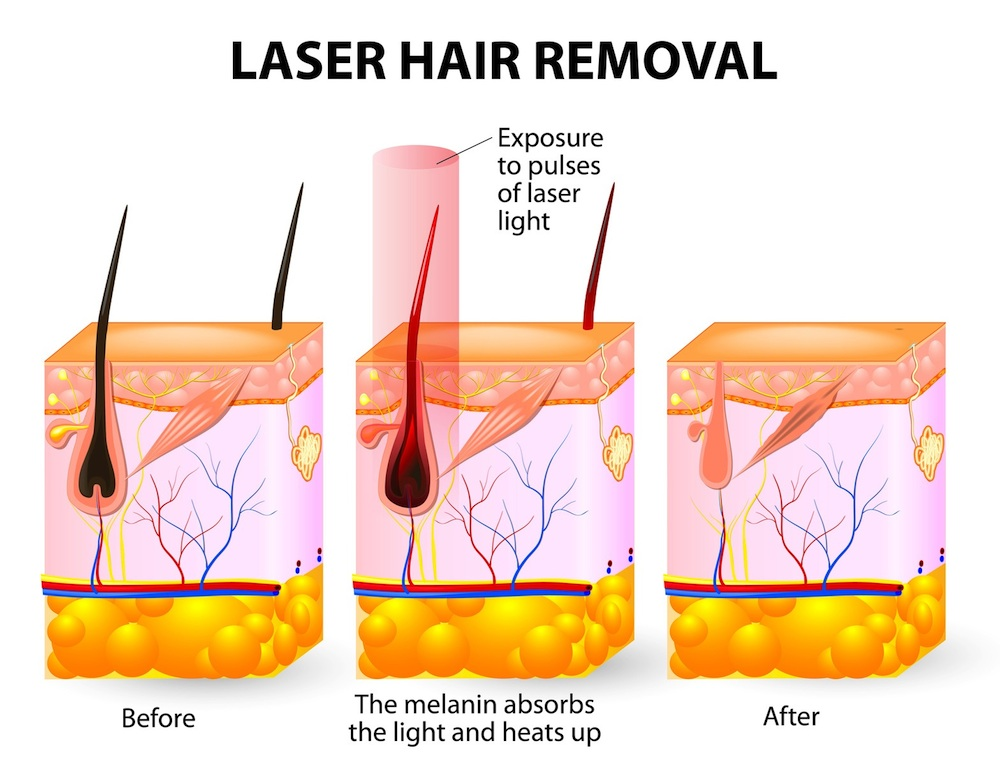 Laser Hair Removal Q A Strayhair